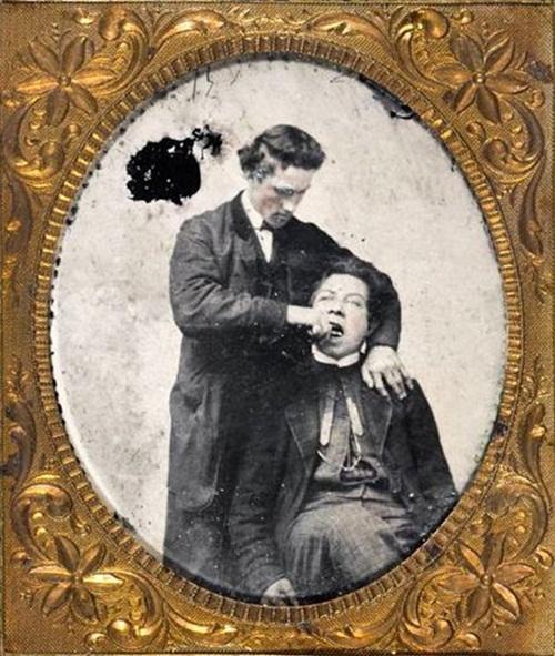 Những hình ảnh khiến bạn rụng rời: Nhổ răng bằng kìm, không thuốc tê - Ảnh 4