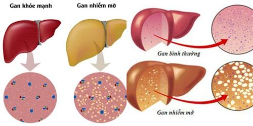 Phương pháp điều trị gan nhiễm mỡ tại nhà và những thực phẩm nên tránh - Ảnh 1