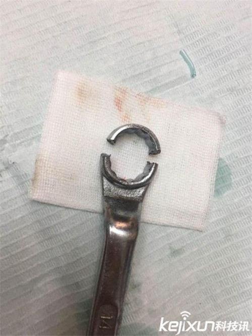 Trường hợp mắc kẹt có 1-0-2: Nhiều chuyên gia bó tay, đến khi có 1 nha sĩ xuất hiện - Ảnh 5