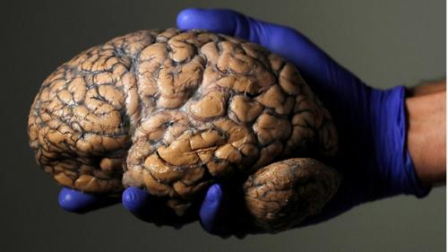 Làm chậm quá trình lão hóa, tăng tuổi thọ 12 năm nhờ cấy ghép não - Ảnh 1