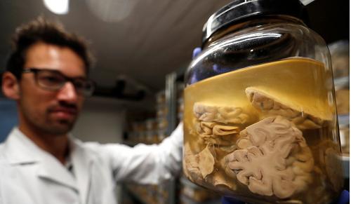 Làm chậm quá trình lão hóa, tăng tuổi thọ 12 năm nhờ cấy ghép não - Ảnh 2