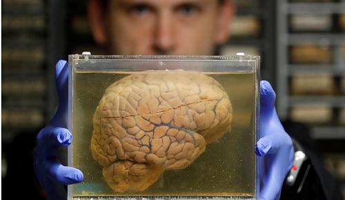 Làm chậm quá trình lão hóa, tăng tuổi thọ 12 năm nhờ cấy ghép não - Ảnh 3
