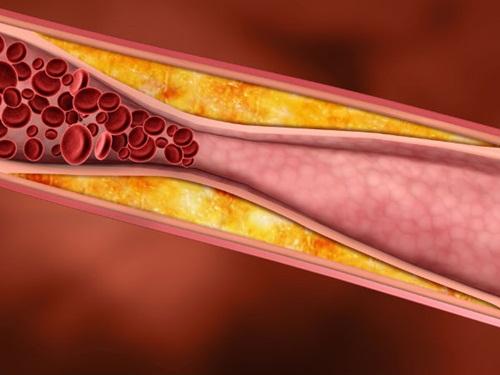 Dùng vitamin vô tội vạ, hậu quả khôn lường - Ảnh 2
