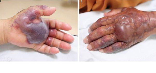 Hàn Quốc: Ăn hải sản sống, cụ ông 71 tuổi phải cắt cụt cả bàn tay do hoại tử - Ảnh 1