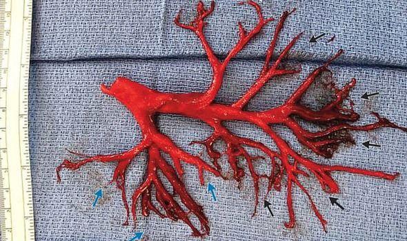 Sự thật thông tin bệnh nhân bị bệnh tim tư vong vì ho ra cả phổi - Ảnh 1