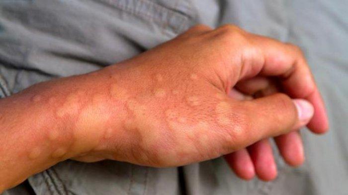 Dị ứng thời tiết, căn bệnh có thể gây chết người vào mùa đông - Ảnh 3