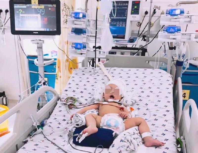 4 giờ chạy đua với tử thần cứu sống bé trai 8 tháng tuổi xuất huyết não cấp không rõ nguyên nhân - Ảnh 2