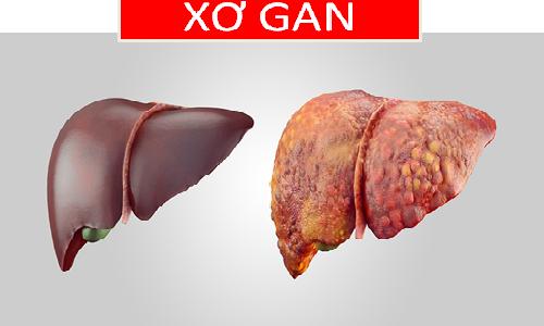 4 nguyên tắc phòng ngừa xơ gan dẫn đến ung thư gan - Ảnh 1