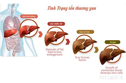 4 nguyên tắc phòng ngừa xơ gan dẫn đến ung thư gan - Ảnh 2
