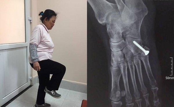 20 năm uống thuốc giảm đau đến loãng xương chỉ vì bị trật khớp - Ảnh 1