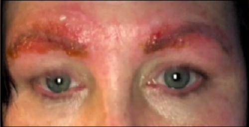 Làm đẹp lông mày: Chẳng ngờ bị nhiễm trùng, suýt tử vong - Ảnh 1