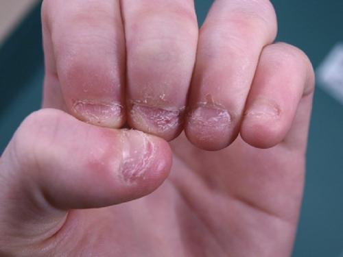Nguy cơ bị hôi miệng, mẻ răng, mọc mụn, nhiễm trùng chỉ vì cắn móng tay - Ảnh 6