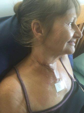 Đi câu cá cùng chồng, người phụ nữ bị con mồi dài 1m phi lên cắt đứt cổ - Ảnh 1