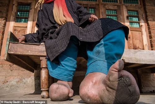 Cô gái trẻ xinh đẹp phải cắt bỏ 8 ngón chân chỉ vì bị muỗi đốt - Ảnh 2