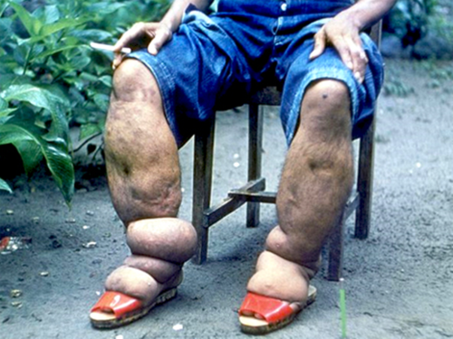 Cô gái trẻ xinh đẹp phải cắt bỏ 8 ngón chân chỉ vì bị muỗi đốt - Ảnh 3
