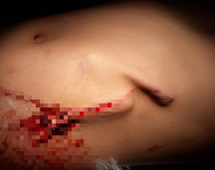 Hà Tĩnh: Bé trai 8 tuổi bị gốc cỏ đâm thủng bụng khi chơi đùa - Ảnh 1