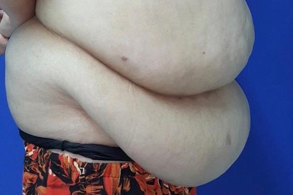 Thành công loại bỏ 7kg mỡ và da thừa sau giảm cân cho một phụ nữ ở Hà Nội - Ảnh 1