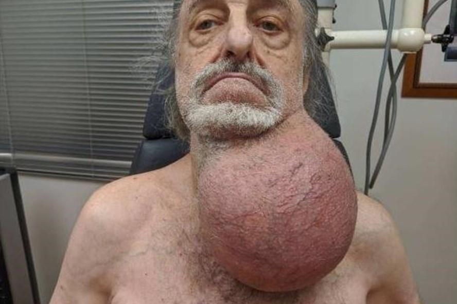 Cụ ông U90 suýt chết vì đeo khối u to bằng quả bóng trên cổ - Ảnh 1