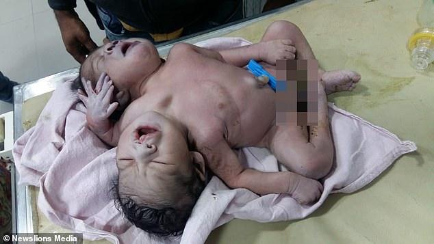 Sản phụ chết ngất khi nhìn thấy con đứa con chào đời có 2 đầu 3 tay - Ảnh 2