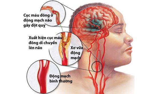 Cảnh báo tình trạng các bác sĩ đột quỵ do áp lực làm việc quá sức - Ảnh 4
