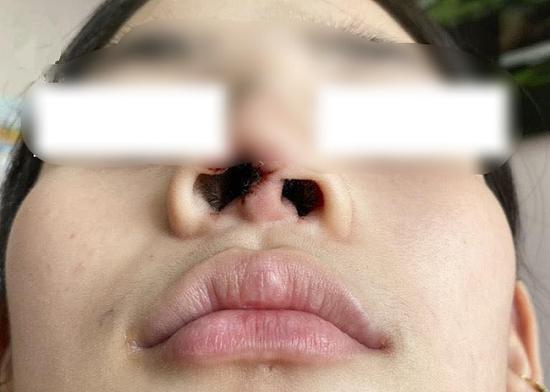Nâng mũi nhiễm trùng, thiếu nữ bị spa sửa thành biến dạng - Ảnh 1