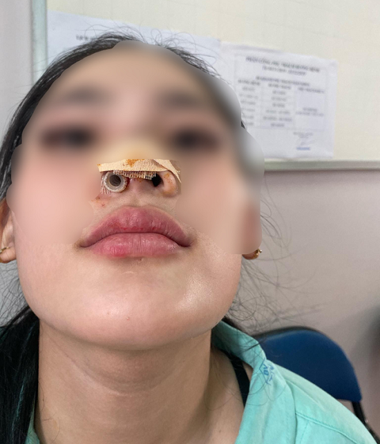 Nâng mũi nhiễm trùng, thiếu nữ bị spa sửa thành biến dạng - Ảnh 2