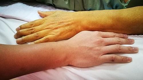 9 dấu hiệu giúp phát hiện ung thư tụy sớm mà mọi người thường bỏ qua - Ảnh 2