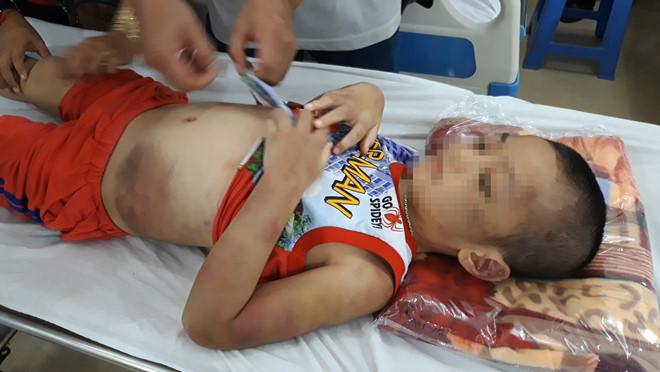 Tây Ninh: Bé trai 6 tuổi bị mẹ và bạn tình đồng tính bạo hành dã man - Ảnh 1
