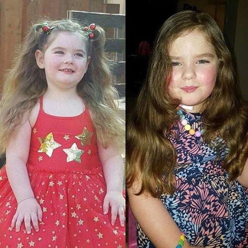 Kỳ lạ cô bé 4 tuổi dậy thì, 5 tuổi đã mắc phải triệu chứng người mãn kinh  - Ảnh 3