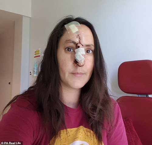 Nghiện làm đẹp da, người phụ nữ bị cắt mất một đoạn mũi - Ảnh 3