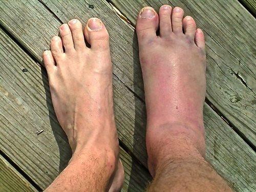 Có những dấu hiệu này ở chân chứng tỏ bạn đang mắc bệnh nguy hiểm - Ảnh 5