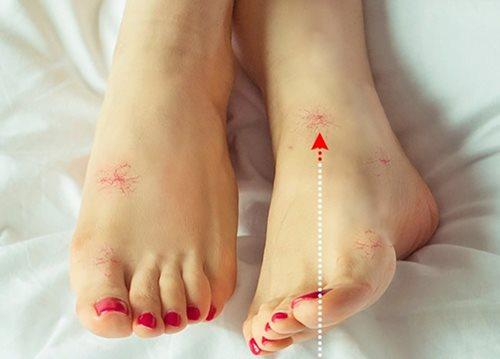 Có những dấu hiệu này ở chân chứng tỏ bạn đang mắc bệnh nguy hiểm - Ảnh 6