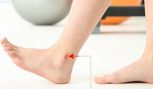 Có những dấu hiệu này ở chân chứng tỏ bạn đang mắc bệnh nguy hiểm - Ảnh 9