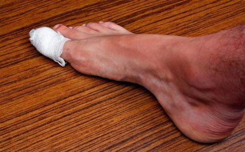 Có những dấu hiệu này ở chân chứng tỏ bạn đang mắc bệnh nguy hiểm - Ảnh 10