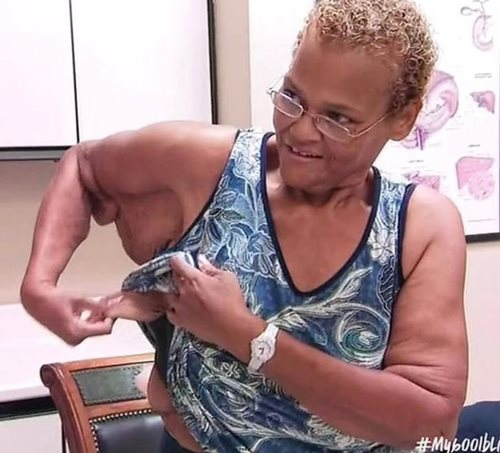 Không thể dự đám tang chồng vì quá béo, người phụ nữ quyết tâm giảm 270kg - Ảnh 5