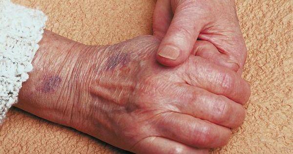 Đừng bỏ qua dấu hiệu da dễ bị bầm tím, có thể là do ung thư máu - Ảnh 2
