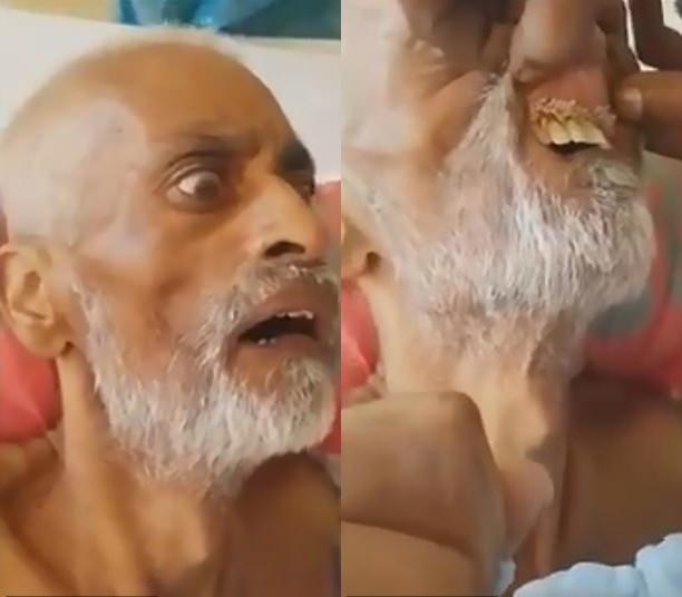 Con trai bệnh nhân sốc nặng khi thấy giòi nhung nhúc trong miệng cha mình - Ảnh 1