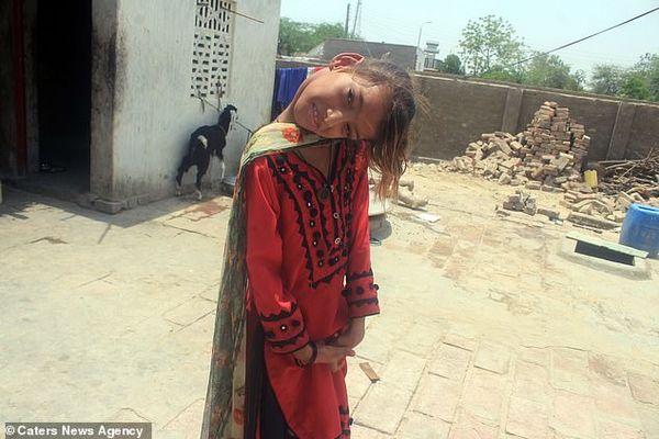 Cổ vẹo 90 độ, bé gái 10 năm khốn khổ vì không thể sống như người bình thường - Ảnh 1