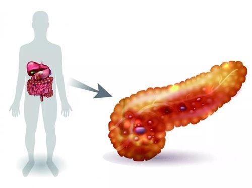 Đau lưng, đi siêu âm mới biết mình mắc bệnh ung thư có tỷ lệ tử vong cao nhất - Ảnh 2