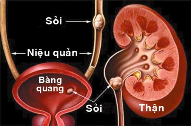 Nguyên nhân khiến nhiều người Việt bị sỏi thận do đâu? - Ảnh 4