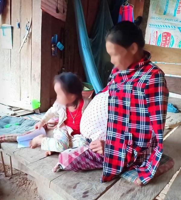 Mang thai 14 năm, người phụ nữ 'đẻ' ra khối u nặng 25kg - Ảnh 1