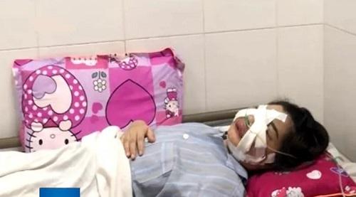 Sau một ngày tiêm mỡ tự thân vào mặt, cô gái trẻ phải nhập viện khẩn cấp vì nhiễm trùng - Ảnh 2