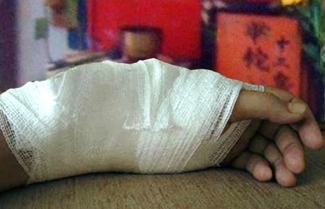 Đắp lá chữa gãy xương, người đàn ông suýt bị hoại tử chân vì biến chứng nặng - Ảnh 2