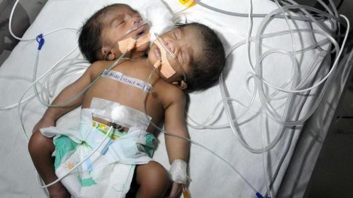 Biết thai nhi bị dị tật, bà mẹ vẫn quyết sinh ra em bé hai đầu - Ảnh 2
