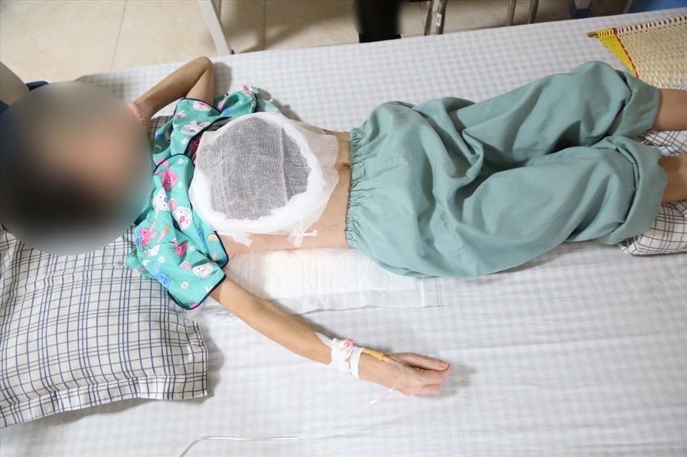 Chữa ung thư vú bằng thuốc nam, nữ bệnh nhân nằm chờ chết do hoại tử - Ảnh 2