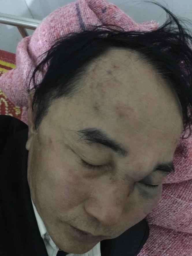 Nghệ An: Nam bác sỹ bị nhân viên quán trà chanh hành hung hội đồng - Ảnh 1