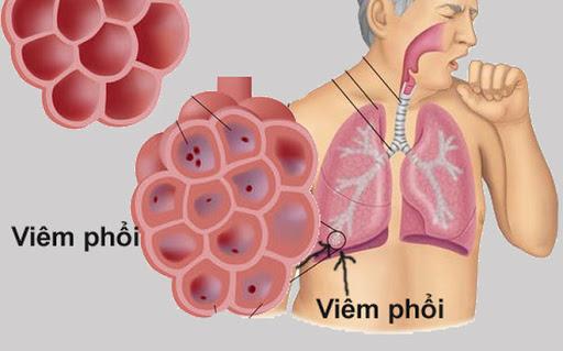 Cách phòng bệnh viêm phổi hiệu quả trong thời tiết nồm, ẩm - Ảnh 1