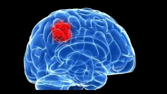 """Những dấu hiệu cơ bản """"tố"""" bạn có thể bị u não, đi khám ngay kẻo hối không kịp - Ảnh 1"""
