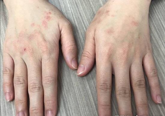 Cảnh báo tác hại của việc lạm dụng nước rửa tay khô - Ảnh 1