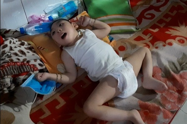 Xót xa bé gái 3 tuổi chỉ nằm một chỗ vì mắc căn bệnh hiếm gặp - Ảnh 1
